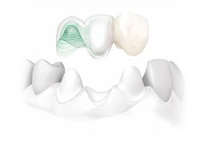 Bridge dentaire tout céramique Procera