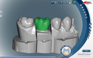 Nobel Procera Conception 3D