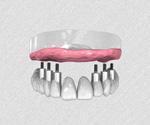 Les bridges sur implant
