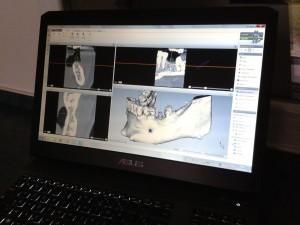 Logiciel de Planification implantaire 3D