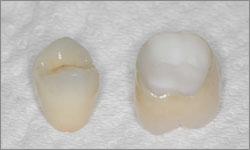 Couronne dentaire tout céramique