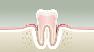 Parodontologie Stade 3