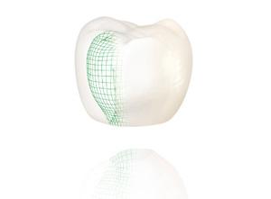 Couronne dentaire tout céramique Procera
