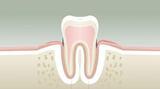 Parodontologie Stade 2